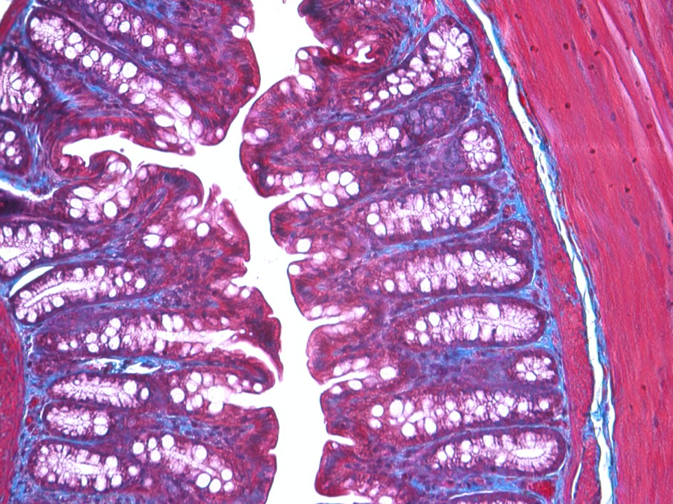 microscopic picture of colon stained with Masson's trichrome
