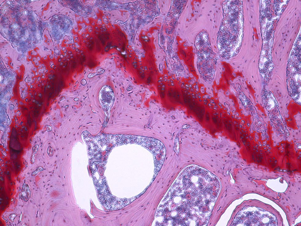 Microscopic picture of articular cartilage stained with safranin-O