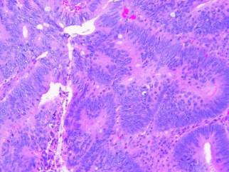 Human colon adenocarcinoma H&E 10x-1