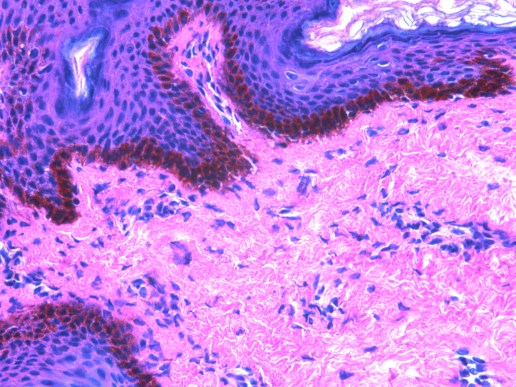 Human Skin stained with H&E