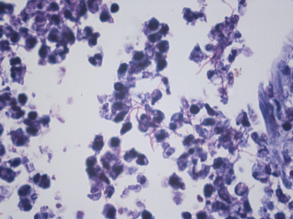 Human lung - Fite stain for nocardia