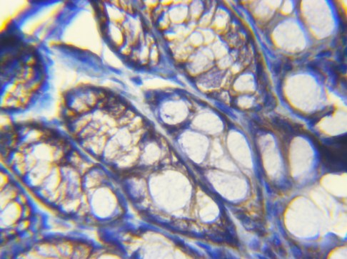 Mouse colon Beta-Catenin Ab