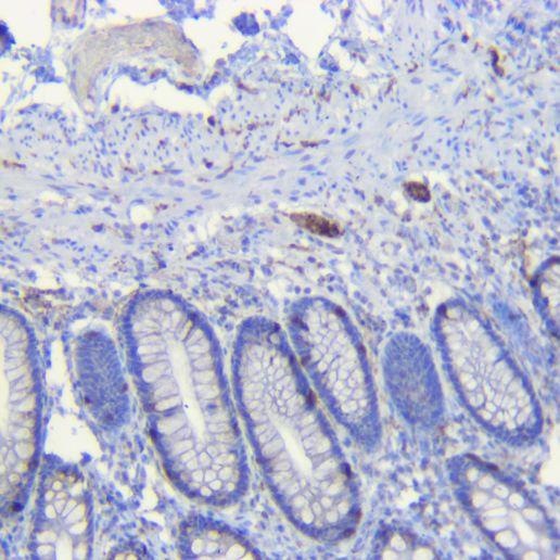 Human colon Synaptophysin antibody
