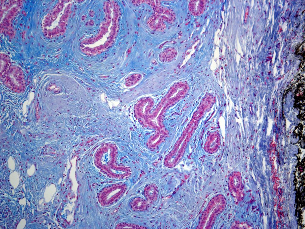Human Breast Alcian blue