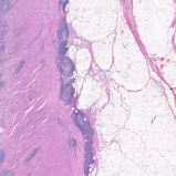 Human colorectal cancer H and E Stain