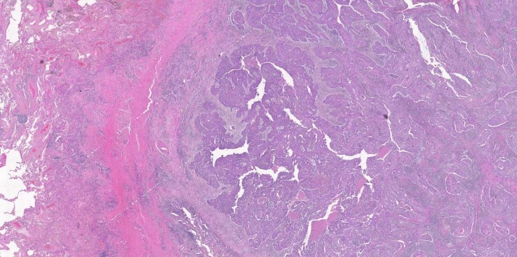 Human H and E stain