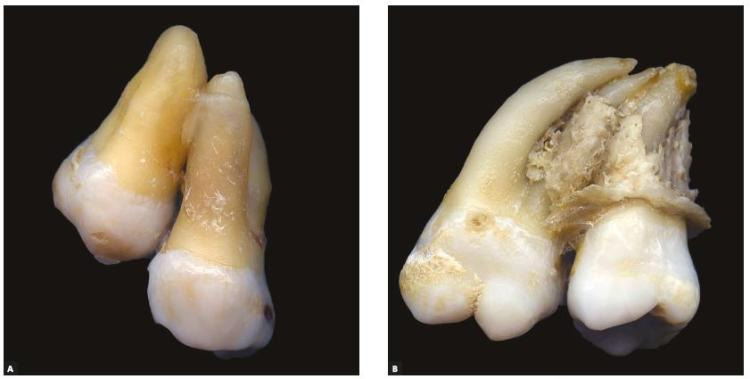 Concrescence: can the teeth involved be moved or separated?