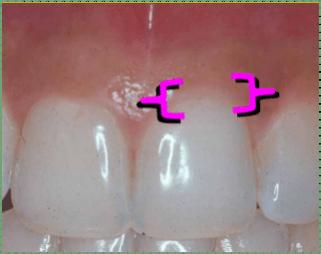 marginal gingiva