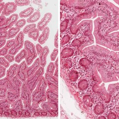 Chicken Muscle Diagram Volvo Penta 5 7 Alternator Wiring Small And Large Intestine | Histology