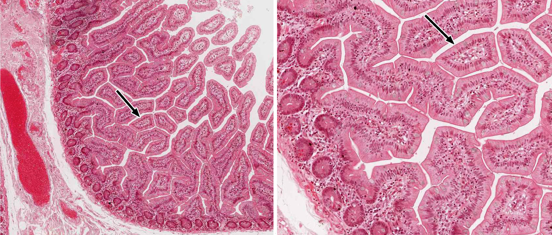 chicken muscle diagram 2002 nissan altima stereo wiring small and large intestine | histology