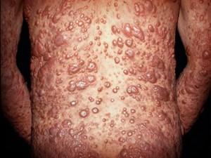 Efectos da lepra nun enfermo