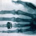 Een van de eerste röntgenfoto's gemaakt van de hand van Alfred von Kolliker