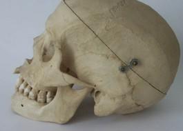Foto van een willekeurige schedel