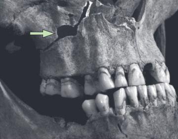 Deel van de schedel van Richard III (The Lancet)