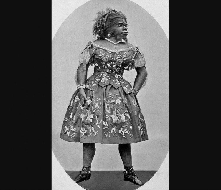Het gebalsemde lichaam van Julia Pastrana