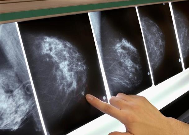 機會率萬分之一 捐贈器官含癌細胞致3人乳癌亡