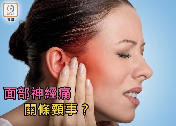 面部神經痛如電擊 原來與頸椎有關 即時新聞 生活 on.cc東網