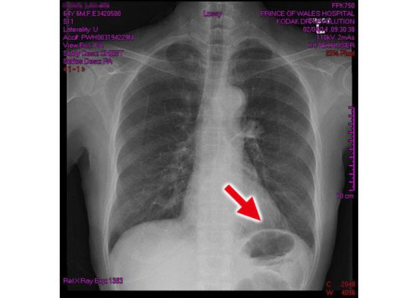 專科醫生:X光非100%準確 - 東網即時