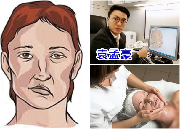 Dr.東:面部按摩可面癱 服類固醇80%人康復|即時新聞|港澳|on.cc東網