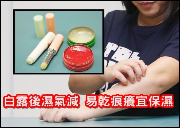 你要知:白露後皮膚乾爭爭 濕疹患者要保濕 即時新聞 港澳 on.cc東網