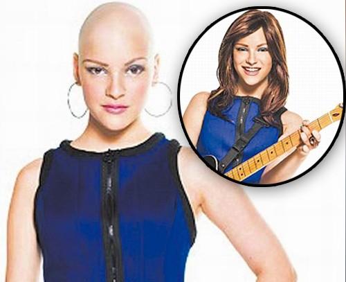 英國禿頭少女靠音樂獲新生勉勵同路人|即時新聞|國際|on.cc東網