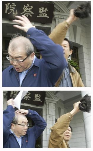 邱毅頭皮頭髮分離 網友:撕髮迫害