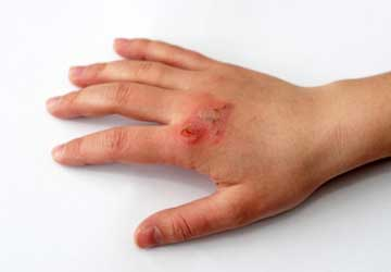 Hand with third-degree burn. Photo by Plougmann/iStock