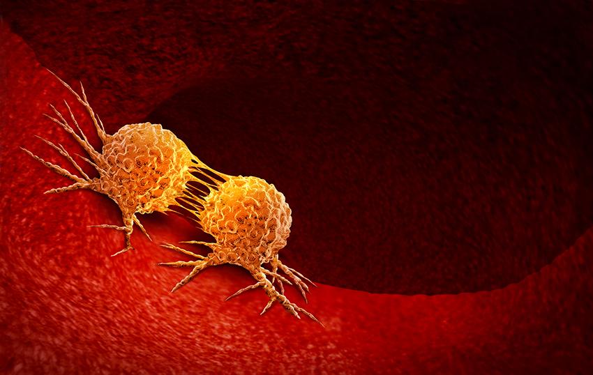 Células cancerígenas