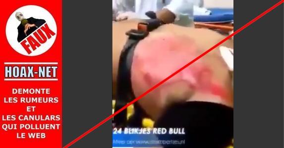 NON, cet homme n'a pas bu 24 canettes de Red Bull