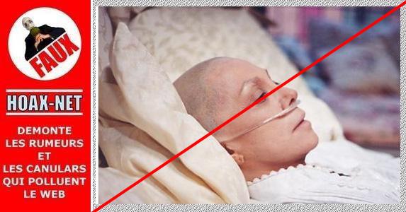 NON, la chimiothérapie ne tue pas les patients atteints du cancer