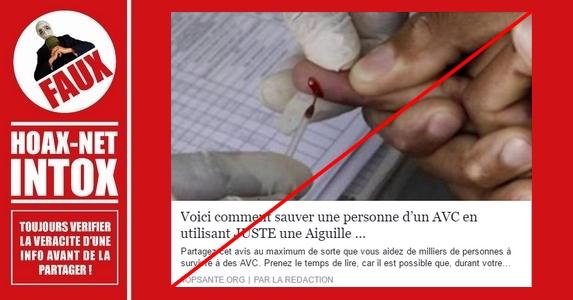 Voici comment NE PAS sauver une personne d'un AVC en utilisant JUSTE une aiguille !!!