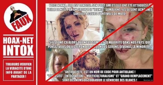 Non, cette agression n'est pas un acte raciste anti-blanc