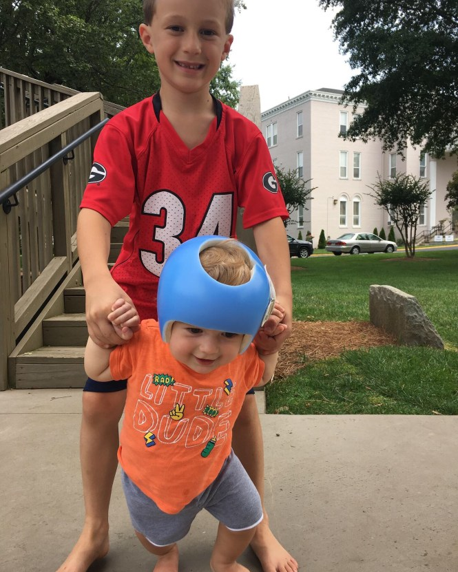 Plagiocephaly and a baby helmet