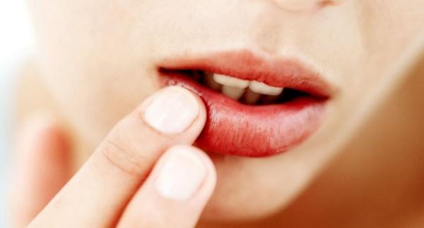 бальзам для сухих губ