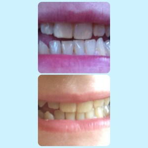 teeth before and after