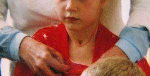 甲状腺手術を受けた少女の傷跡