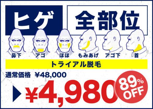 ゴリラクリニック ヒゲ全部位4980円