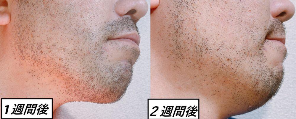 男性のヒゲ脱毛のビフォー・アフター 脱毛後1週間と脱毛後2週間