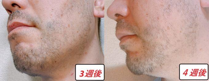 男性の左頬のヒゲが伸びた写真 写真左側・脱毛後3週間と右側・脱毛後4週間
