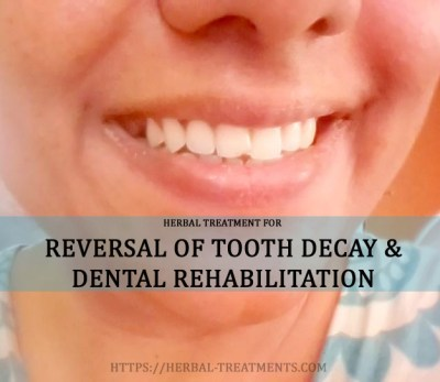 Herbs for dental health, to reverse tooth decay, loss of enamel and plaque formation