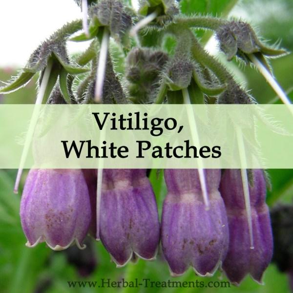 Herbal Medicine for Vitiligo, Leucoderma White Patches