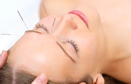 holistic healing acupuncture -