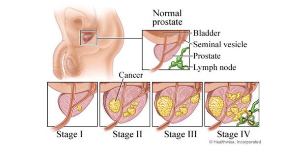 PROSTATE CANCER STAGING
