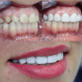 Hollywood Smile Germany And Medical Tourism Abroad