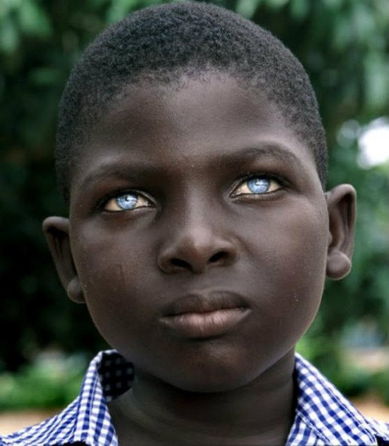 蒼い瞳の少年