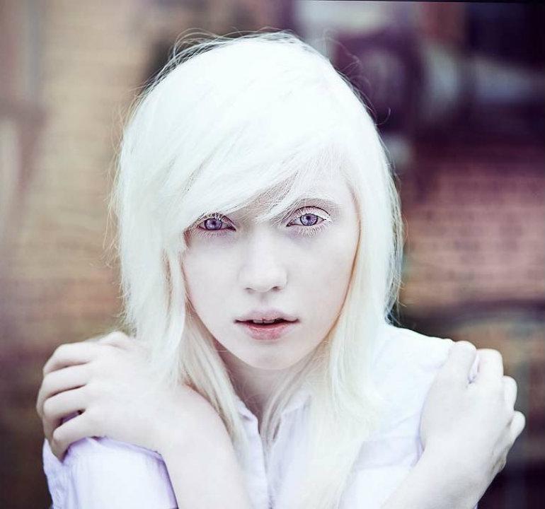 アルビノの少女の瞳