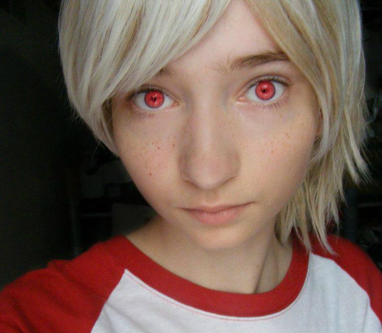 目が赤い人