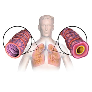 Graphic of Asthma and the Lungs