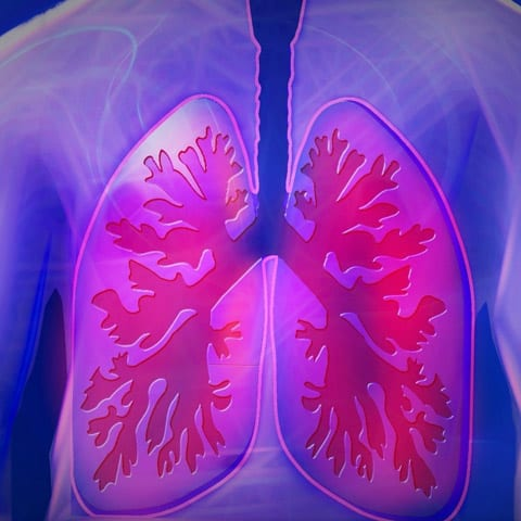 Graphic of Bronchitis and Lungs