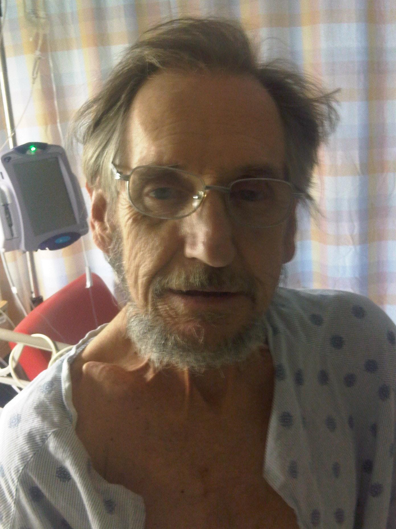 Tonys face Oct 8 2009